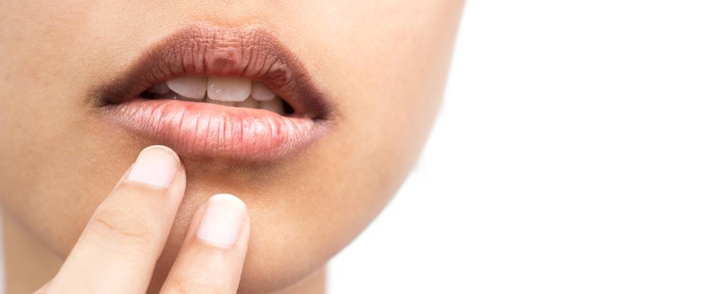 Lábios secos: causas e cuidados