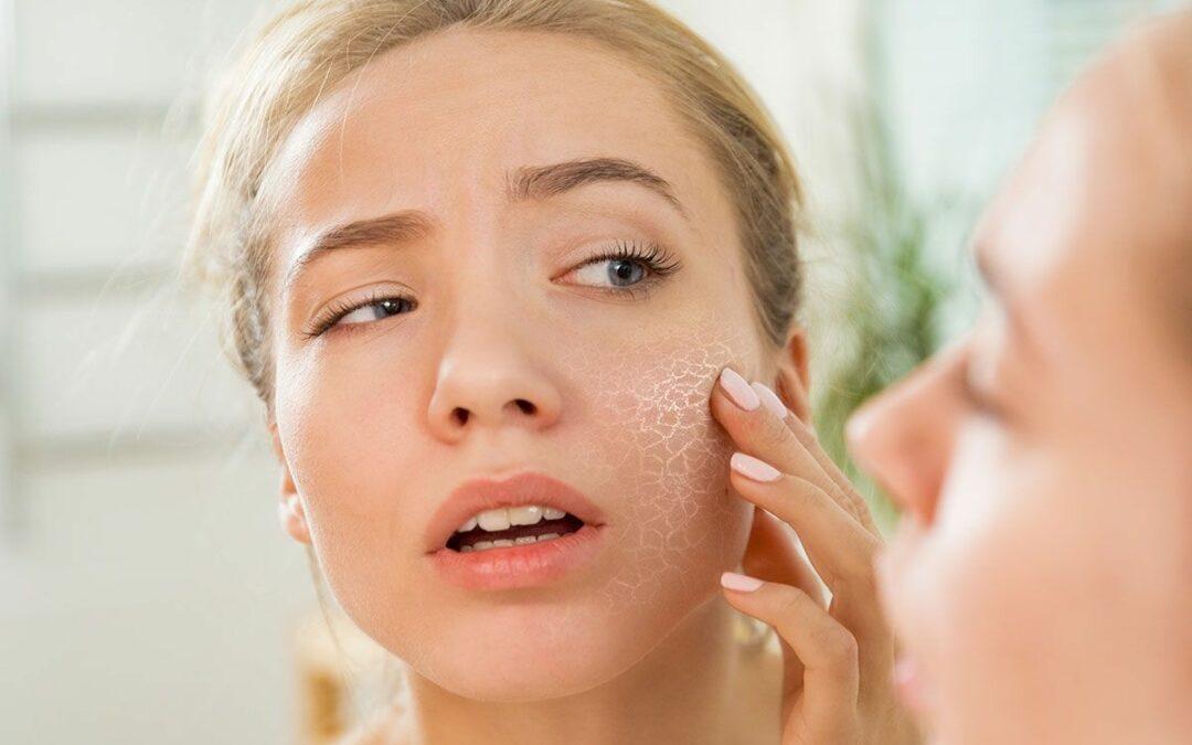 Tratar e prevenir a pele seca pós-verão